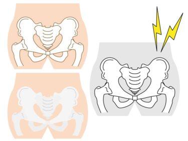 腰椎ヘルニア&座骨神経痛のお客様