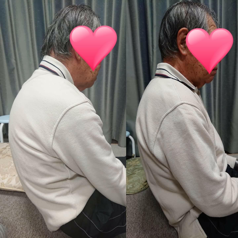 一回の施術で猫背が改善!姿勢は筋肉をゆるめると改善される